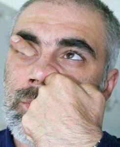 man sticks finger through his eye
